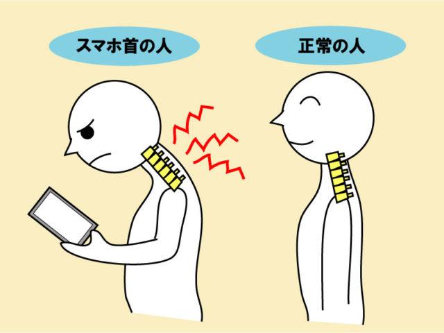 首のトラブル解消の前になんで痛くなるのか考える