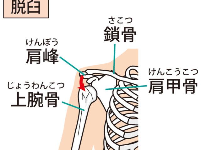 肩のトラブル